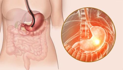 早期胃癌筛查现状及思考